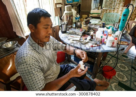 FALAM, MYANMAR - JUNE 18 2015: Dentist in the recently opened to foreigners area of Chin State - western Myanmar (Burma) - stock photo