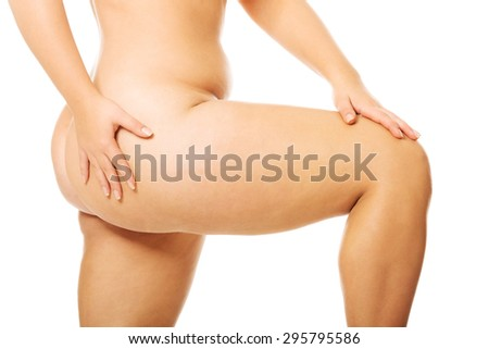Fat women legs with overweight - stock photo