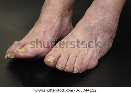 feet of a woman with nail fungus