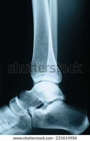 Female ankle xray made in a  hospital.