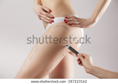 Female body with the drawing arrows on it isolated on white. Fat lose, liposuction and cellulite removal concept - stock photo