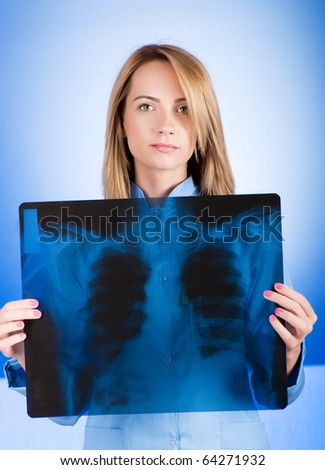 Female doctor carefully x-ray of patient