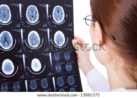 Female doctor examining a brain cat scan