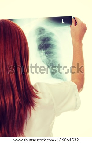 Female doctor examining a chest x-ray photo scan.  - stock photo