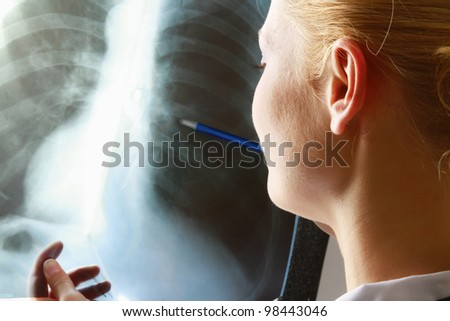 Female doctor with an x-ray - stock photo