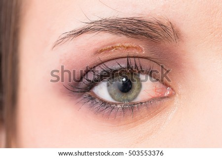 Female eye with scar after surgery