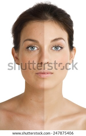 Female face divided into two parts one healthy and one UV damaged.
