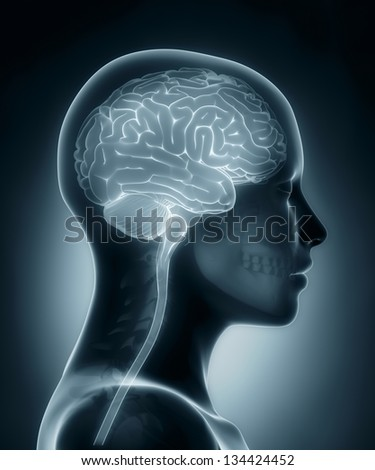 Female Female brain medical x-ray scan - stock photo