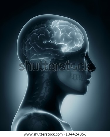 Female Frontal lobe medical x-ray scan - stock photo