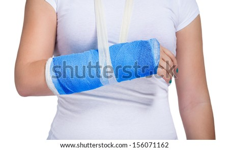 Female patient with a cast on arm, isolated on white background  - stock photo