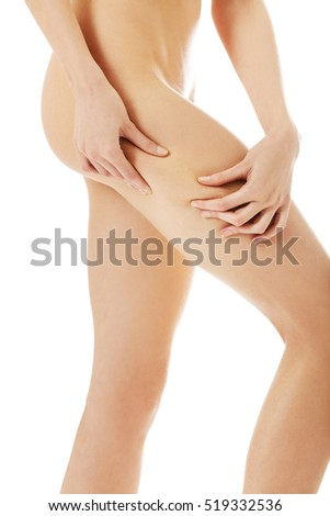 Female squeezes cellulite skin on her legs. Close-up shot on white background.