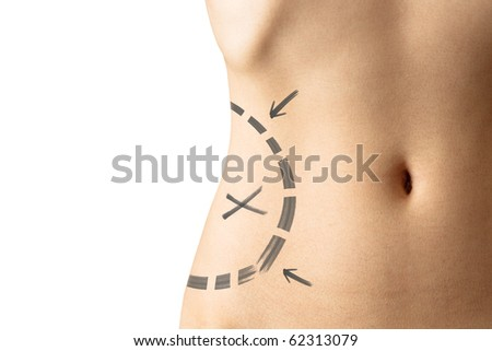 Female waistline about to perform liposuction isolated on white background - stock photo