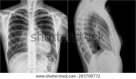 Film chest x-ray PA upright : show 2 different view - stock photo