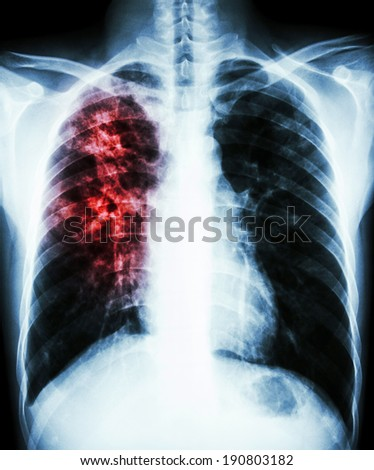 film chest x-ray PA upright : show interstitial infiltration at right lung due to mycobacterium tuberculosis infection (Pulmonary tuberculosis) - stock photo