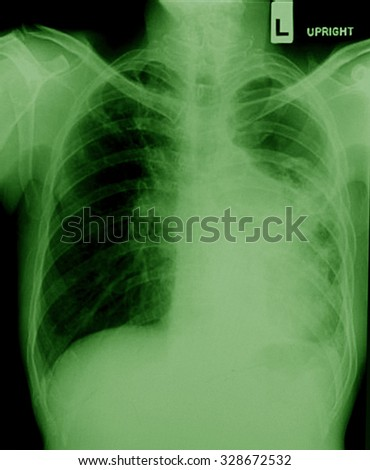 film chest X-ray PA upright : show pleural effusion at left lung due to lung cancer - stock photo
