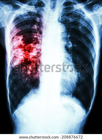 film chest x-ray show alveolar infiltrate and fibrosis at right lung due to Mycobacterium tuberculosis infection (Pulmonary Tuberculosis) - stock photo