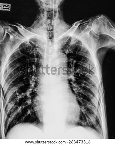 film chest x-ray show fibrosis & interstitial & patchy infiltrate at both lung due to Mycobacterium tuberculosis infection (Pulmonary Tuberculosis)