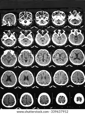 Film CT brain of a man with sudden alteration of conscious and right hemiplegia: Revealed hyper-acute infarction at left fronto-temporo-parietal lobes, including BG, along territory of left MCA branch - stock photo