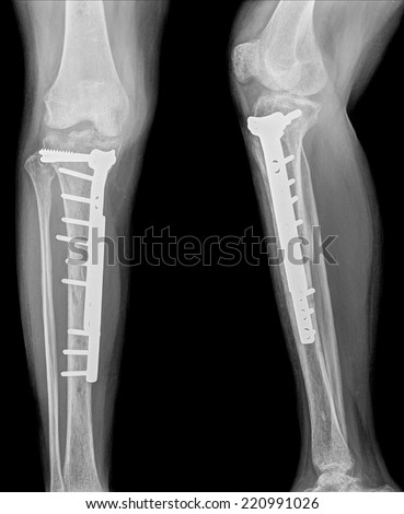 film leg AP/lateral : show fracture shaft of tibia and fibular (leg's bone). patient was operated and insert plate and screw for fix leg's bone  - stock photo