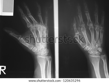Film right hand and wrist of a 56 years old woman Antero-Posterior and lateral views, history of falling during step down from hill with swelling and pain of hand and wrist. - stock photo