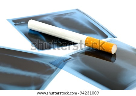 Film x-ray and cigarette on white background. - stock photo