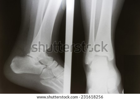 film x-ray ankle AP/Lateral : show fracture distal tibia and fibula (leg's bone) and ankle joint dislocation - stock photo