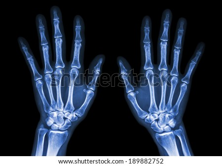 film x-ray both hand AP : show normal human's hands on black background (isolated) - stock photo