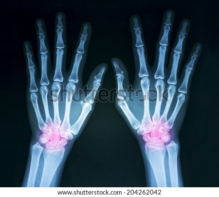 Film x-ray both human's hands and wrist arthritis, marking in red color - stock photo