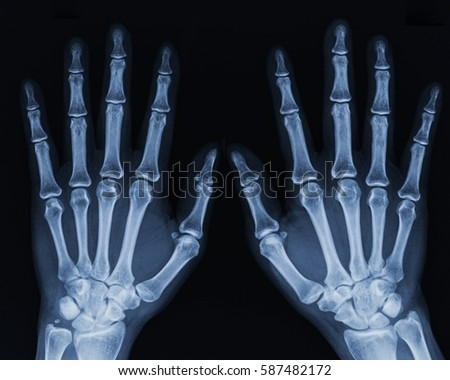 x ray hand wwwpixsharkcom images galleries with a bite