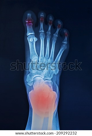 Film x-ray human's ankle and toe with arthritis in red color - stock photo