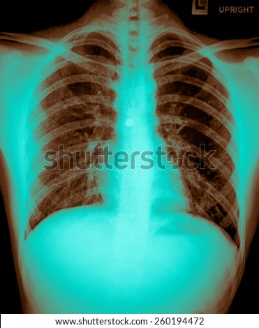 Film X ray image of a bullet from gun in human chest - stock photo