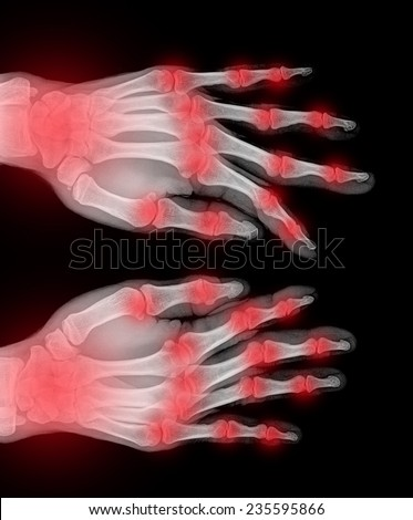 Film x-ray normal both human's hands - stock photo