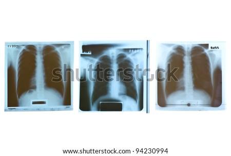 Film x-ray on white background. - stock photo