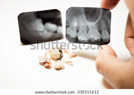 Film X-Ray scan for impacted tooth and tooth removal - stock photo
