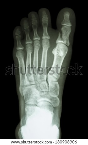 film x-ray show fracture proximal phalange at first toe - stock photo