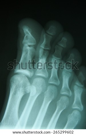 film x-ray show fracture toe bone at first toe. - stock photo