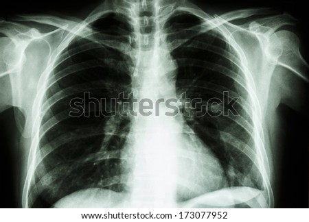 film X-ray show normal human's chest  (bone and internal organ)
