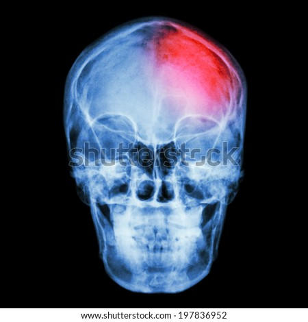 Film X-ray skull and headache. (Stroke,Cerebrovascular accident) - stock photo