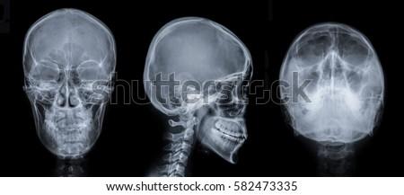 Film Xray Skull Series APLAT Water View Stock Photo ... X Ray Views Of Skull