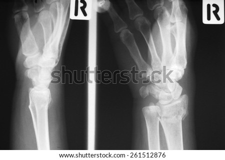 film x-ray wrist  fracture in adults