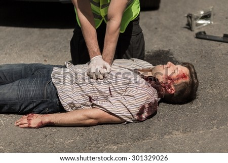 First aid for bloody car accident casualty - stock photo