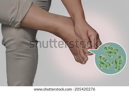 Foot and bacteria. - stock photo