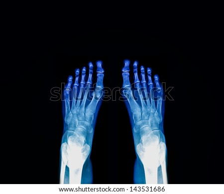 Foot fingers exposed on x-ray - stock photo