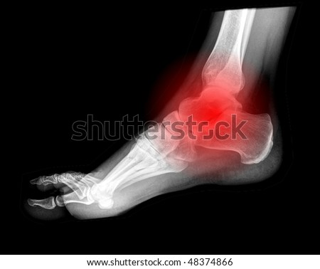 foot pain, x-ray side view - stock photo
