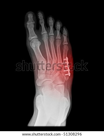 foot surgery of a jones fracture on black background - stock photo