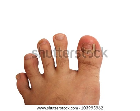 Foot without toe nail and bruise on nails - stock photo