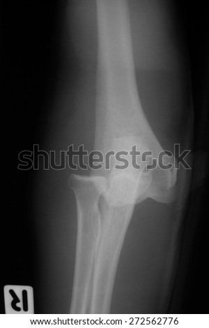 forearm x-rays image showing elbow dislocation