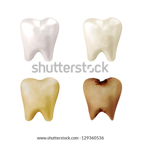 Four different teeth from bright white, to yellow to decayed and rotten on a white isolated background for a dentist concept. - stock photo