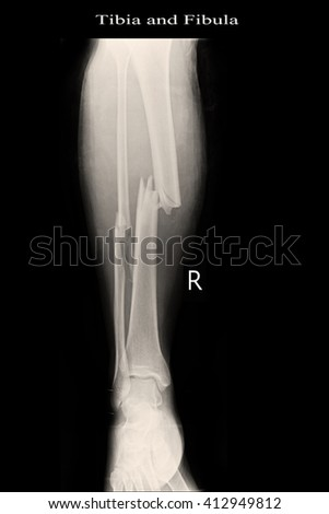 Fracture right leg tibia and fibular