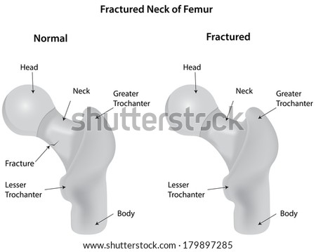 Fractured Neck Femur Diagram Labeled Stock Illustration 179897285